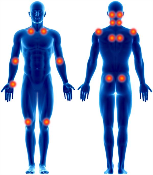 Alle Tenderpoints bei Fibromyalgie in einer anschaulichen Grafik